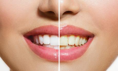 Odonto Oferece Curso De Clareamento Dental Uninorte Manaus